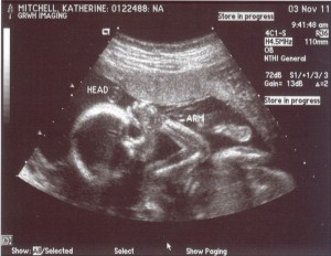 female fetus 20 weeks
